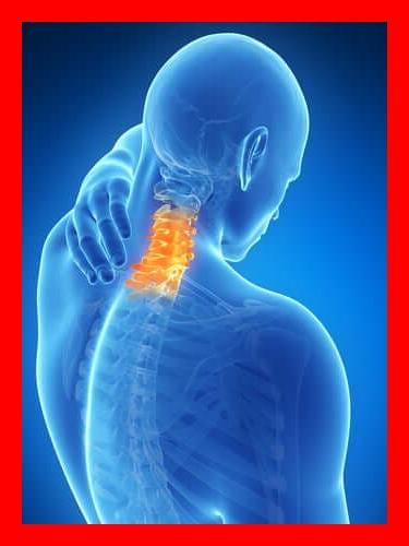 Mal au cou Douleurs cervicales: Symptômes, causes et traitements (cervicalgies)